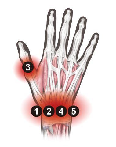 サポーター おすすめ 腱鞘炎