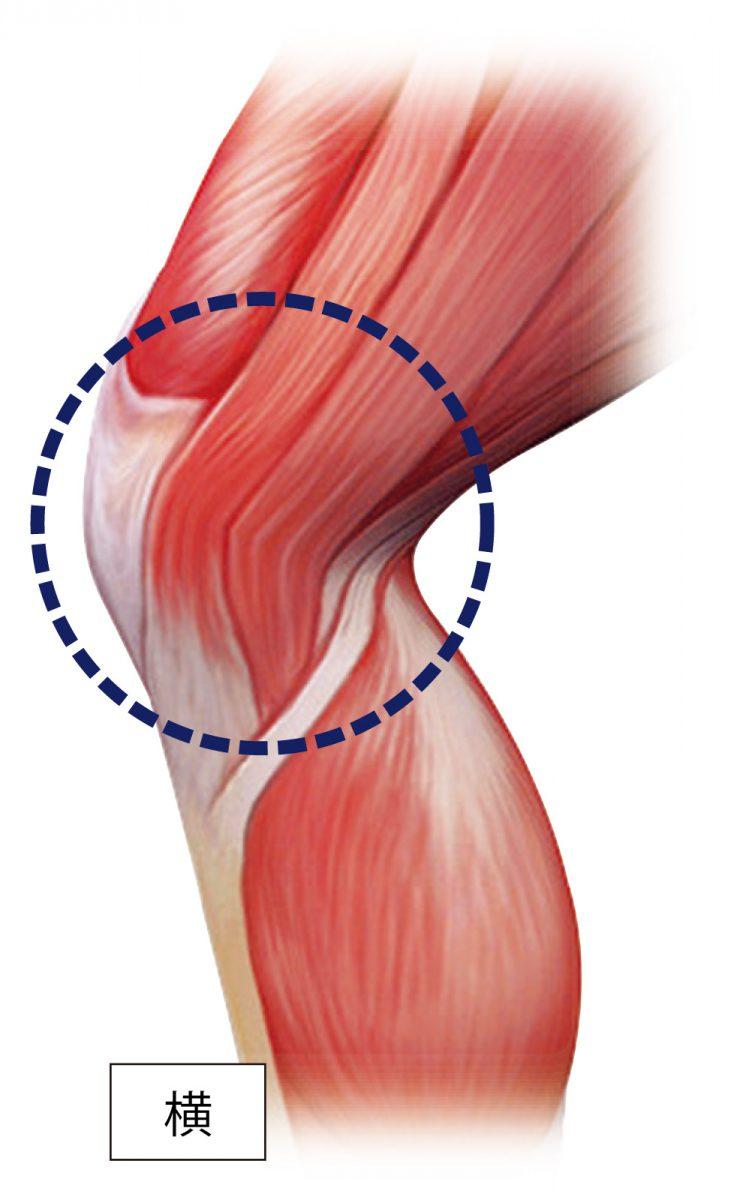 ランナーのひざ周辺の痛みを軽減