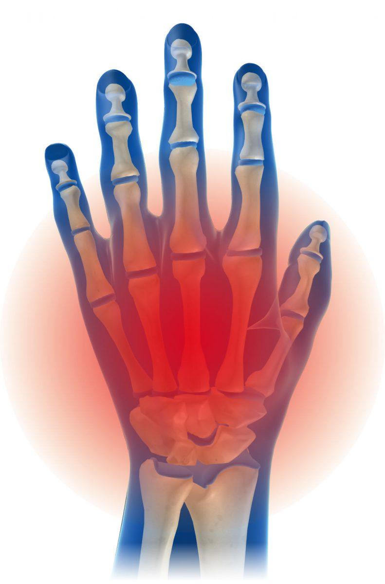 手首サポーターの選び方、手首の骨折後のケアに(病院指定の装具を使用後)