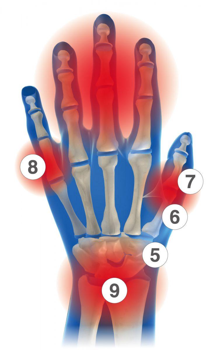 手首サポーターの選び方、日常生活(家事など)での慢性的な手首・指の問題に