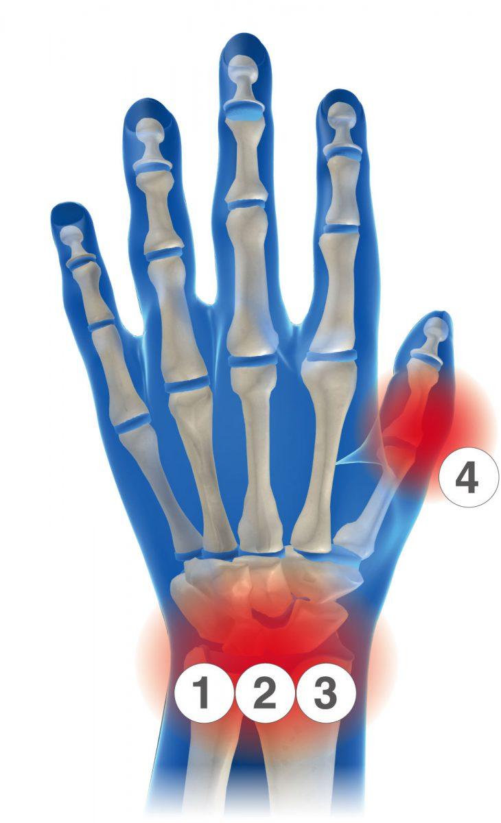 手首サポーターの選び方、スポーツ時の手首・指の問題に